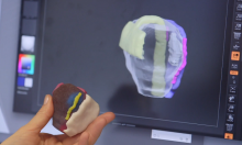 3D Printed Kidney and Prostate Models